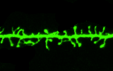 The image depicts a dendritic segment with spiny bulbed protrusions.