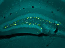 A coronal segment of the adult mouse hippocampus the yellow puncta mark newborn neurons.